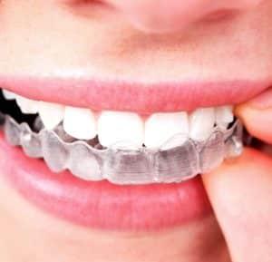 จัดฟันใส
