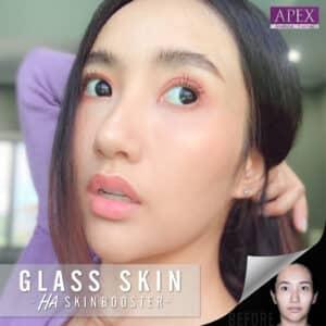 Juvéderm Volite HA Skin Booster Glass Skin